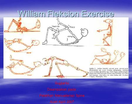 William Fleksion Exercise Oleh : Sugijanto Disampaikan pada: Pelatihan Manualterapi Spine Aceh April 2007.