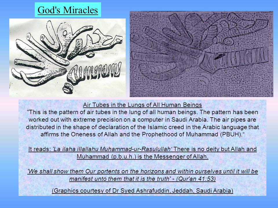 God s Miracles Air Tubes in the Lungs of All Human Beings This is the pattern of air tubes in the lung of all human beings.