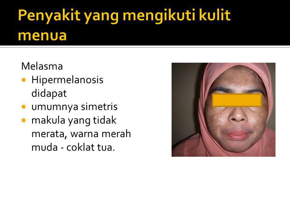  Keratosis seboroik  Freckles  Tumor ganas kulit, Ca planoseluler atau SCC