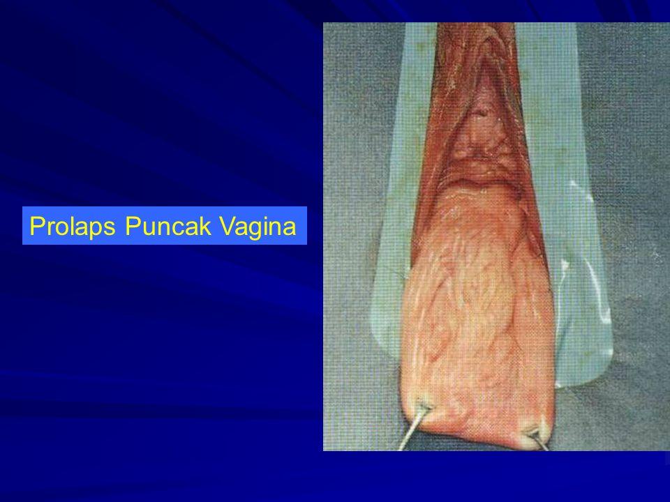 Prolaps Puncak Vagina