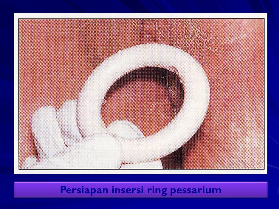 Persiapan insersi ring pessarium