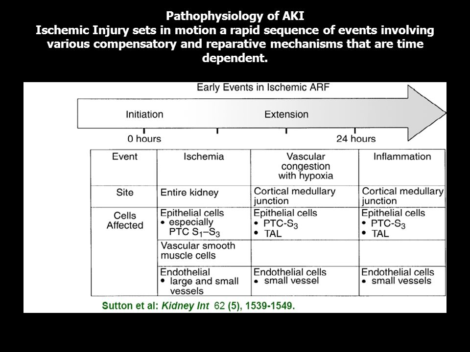 Pathophysiology of AKI Ischemic Injury sets in motion a rapid sequence of events involving various compensatory and reparative mechanisms that are time dependent.