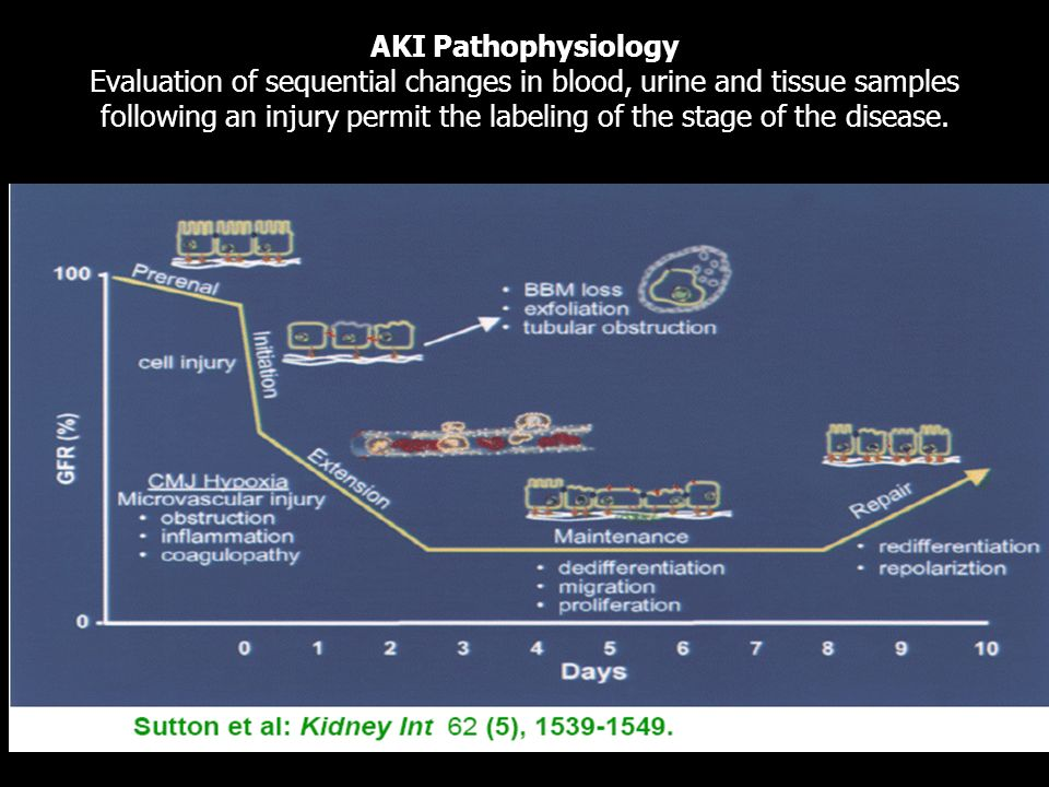 AKI Pathophysiology Evaluation of sequential changes in blood, urine and tissue samples following an injury permit the labeling of the stage of the disease.