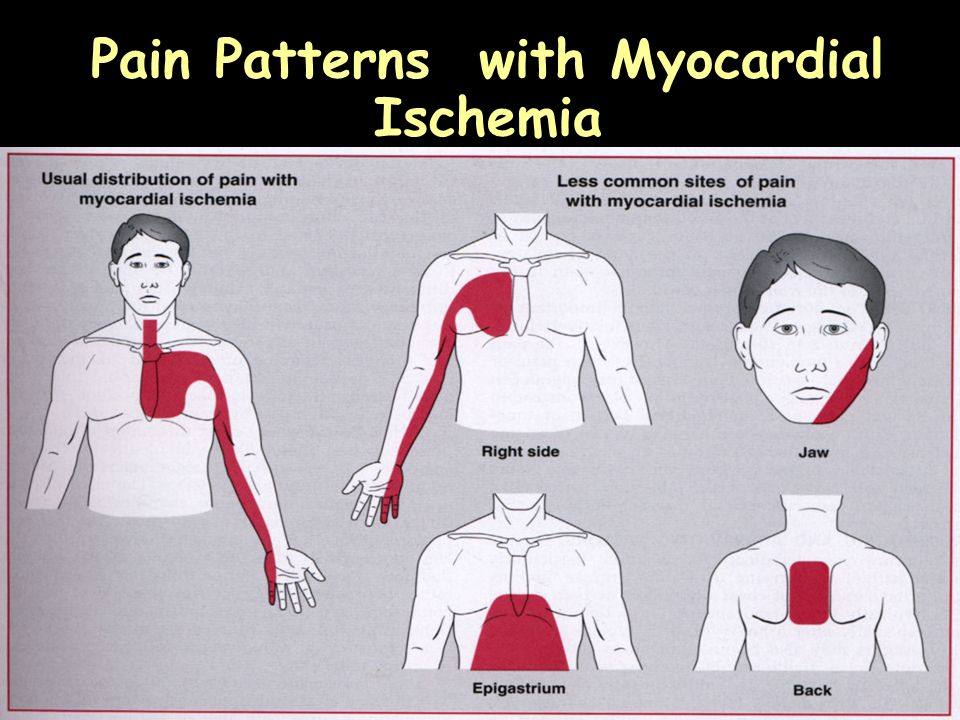 Pain Patterns with Myocardial Ischemia