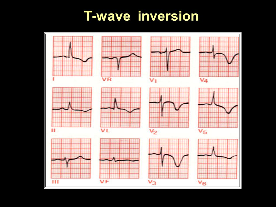 T-wave inversion