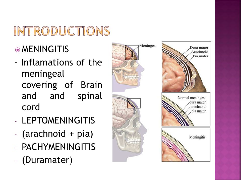 introductions MENINGITIS