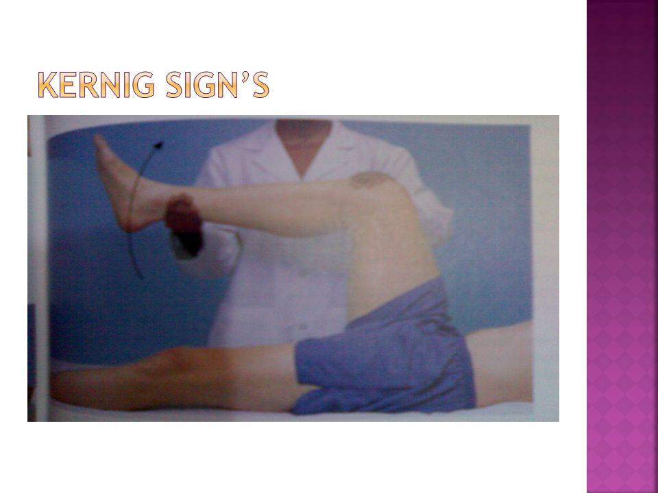 Kernig Sign's