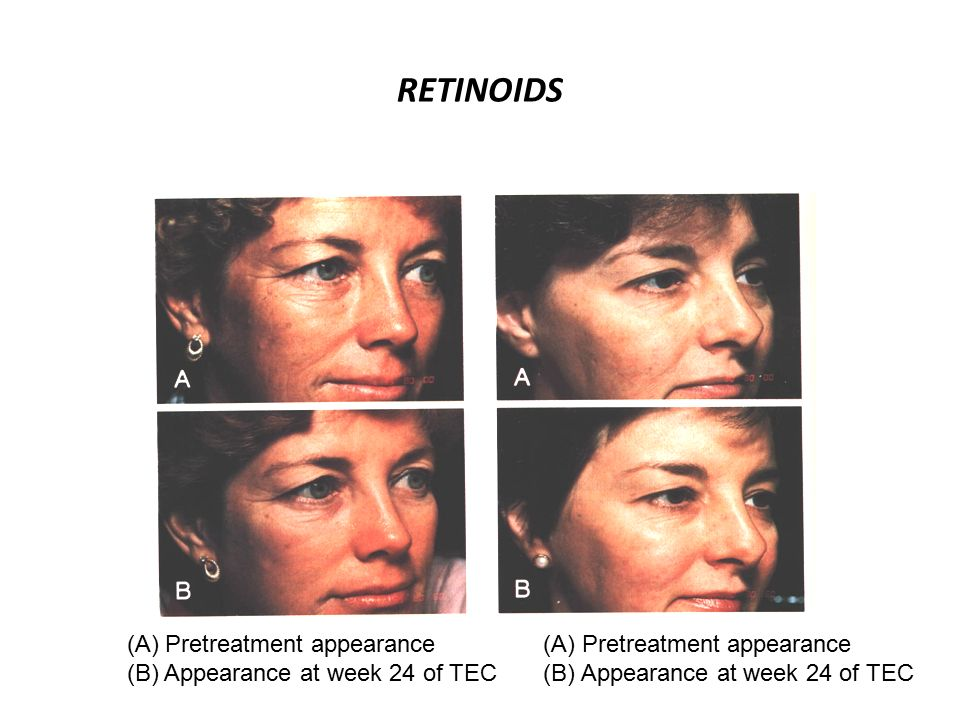 RETINOIDS (A) Pretreatment appearance (B) Appearance at week 24 of TEC