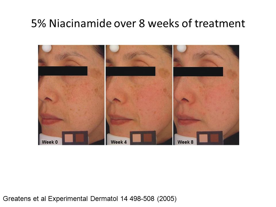5% Niacinamide over 8 weeks of treatment