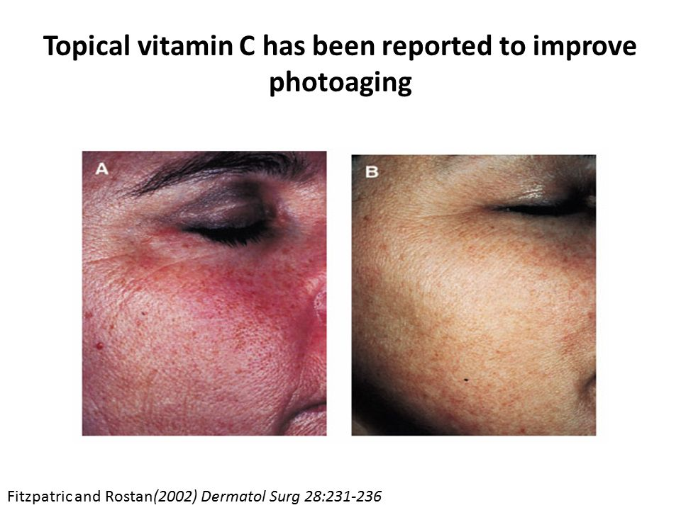 Topical vitamin C has been reported to improve photoaging