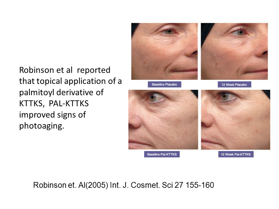 Robinson et al reported that topical application of a palmitoyl derivative of KTTKS, PAL-KTTKS improved signs of photoaging.