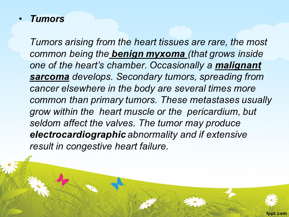 Tumors Tumors arising from the heart tissues are rare, the most. common being the benign myxoma (that grows inside.