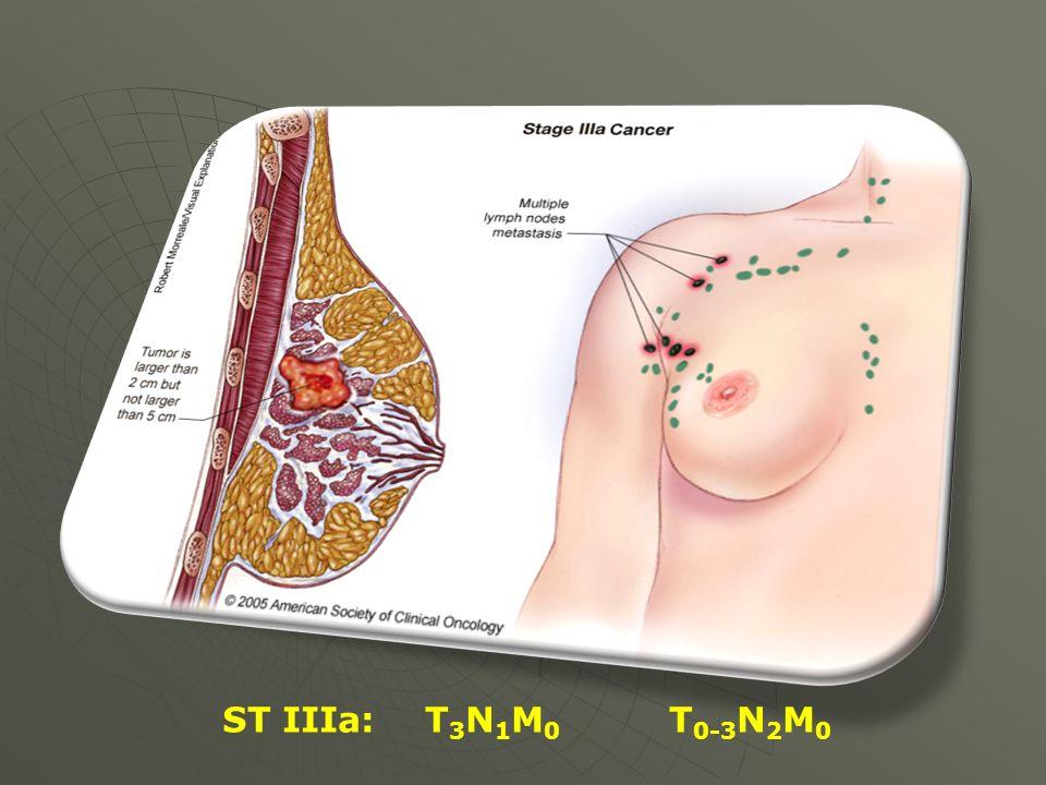 ST IIIa: T3N1M0 T0-3N2M0