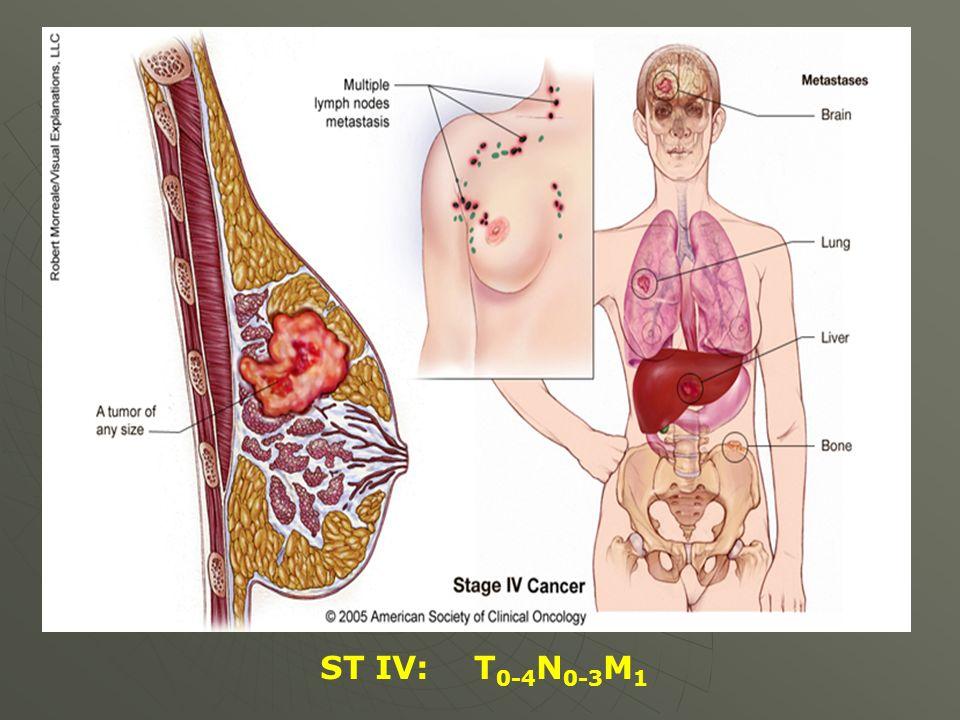 ST IV: T0-4N0-3M1