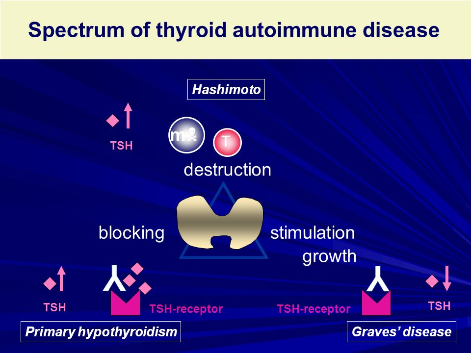 Spectrum of thyroid autoimmune disease