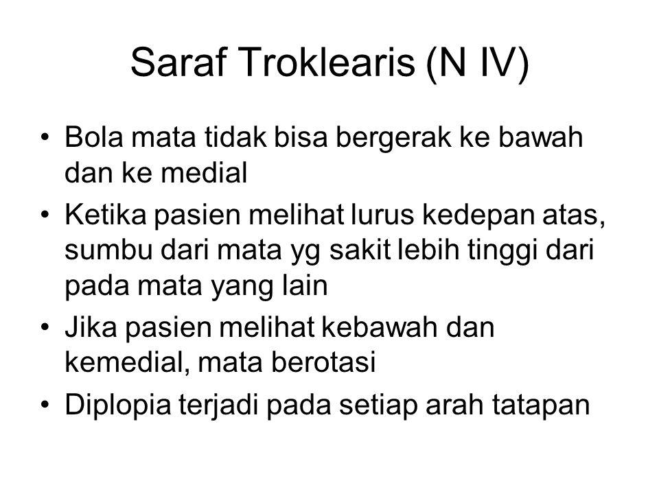 Saraf Troklearis (N IV)