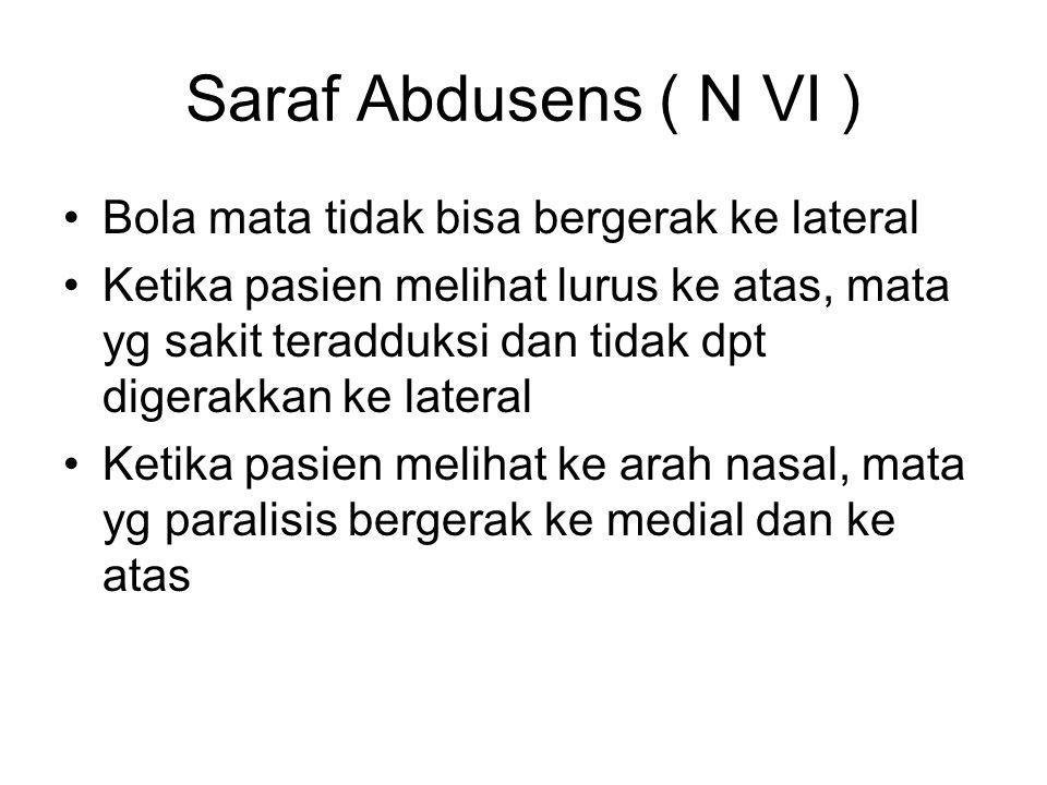 Saraf Abdusens ( N VI ) Bola mata tidak bisa bergerak ke lateral