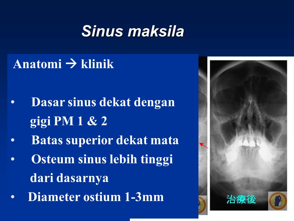 Sinus maksila Anatomi  klinik Dasar sinus dekat dengan gigi PM 1 & 2