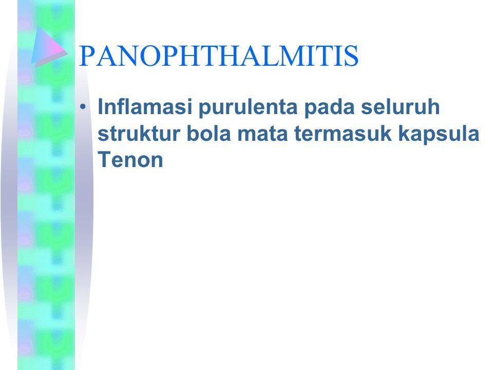 PANOPHTHALMITIS Inflamasi purulenta pada seluruh struktur bola mata termasuk kapsula Tenon