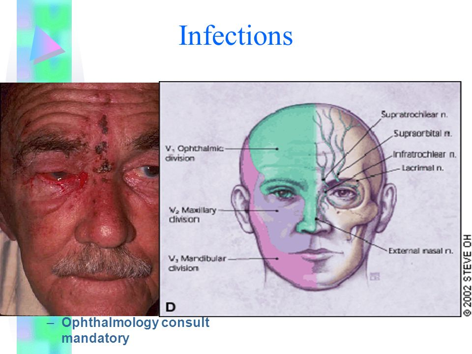 Infections Herpes Zoster Ophthalmicus