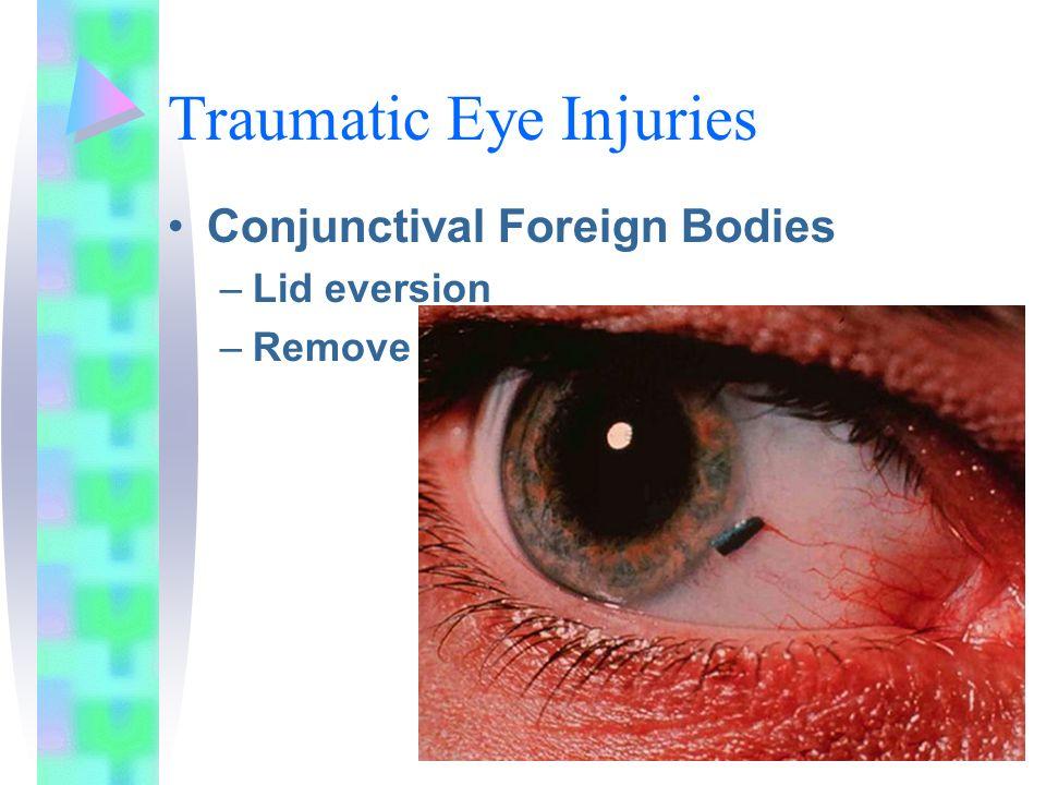Traumatic Eye Injuries