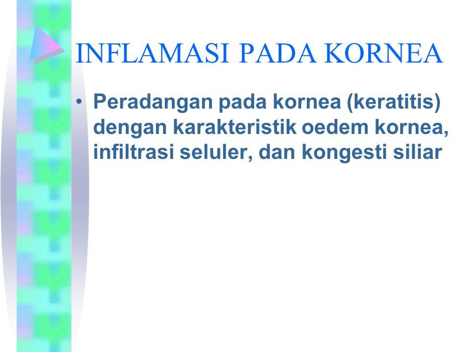 INFLAMASI PADA KORNEA Peradangan pada kornea (keratitis) dengan karakteristik oedem kornea, infiltrasi seluler, dan kongesti siliar.