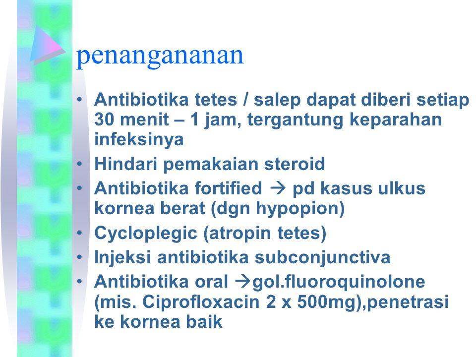 penangananan Antibiotika tetes / salep dapat diberi setiap 30 menit – 1 jam, tergantung keparahan infeksinya.