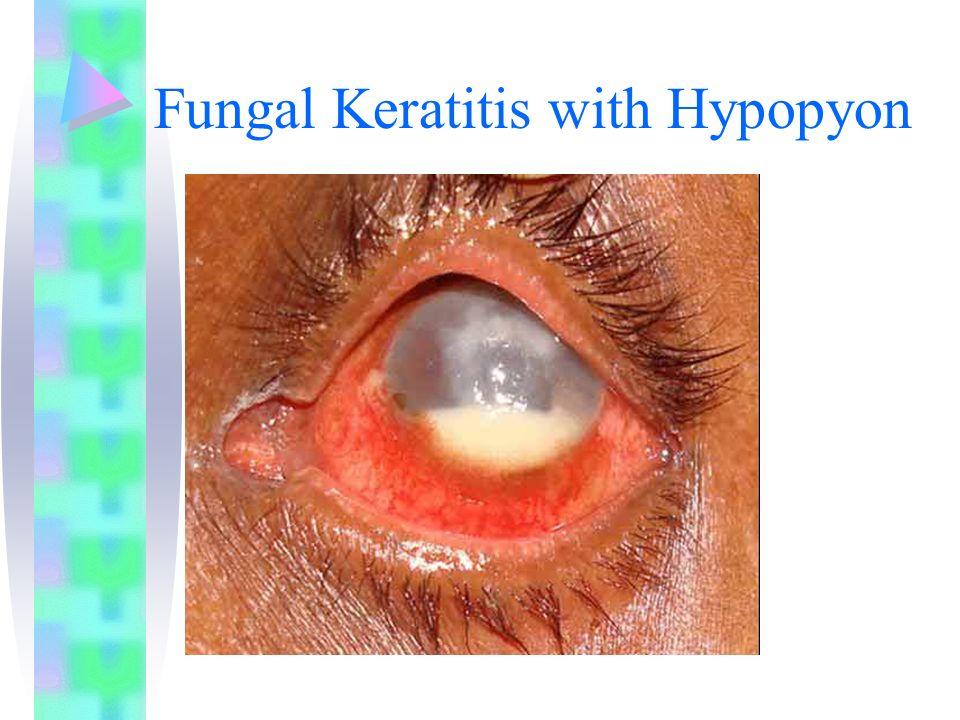Fungal Keratitis with Hypopyon