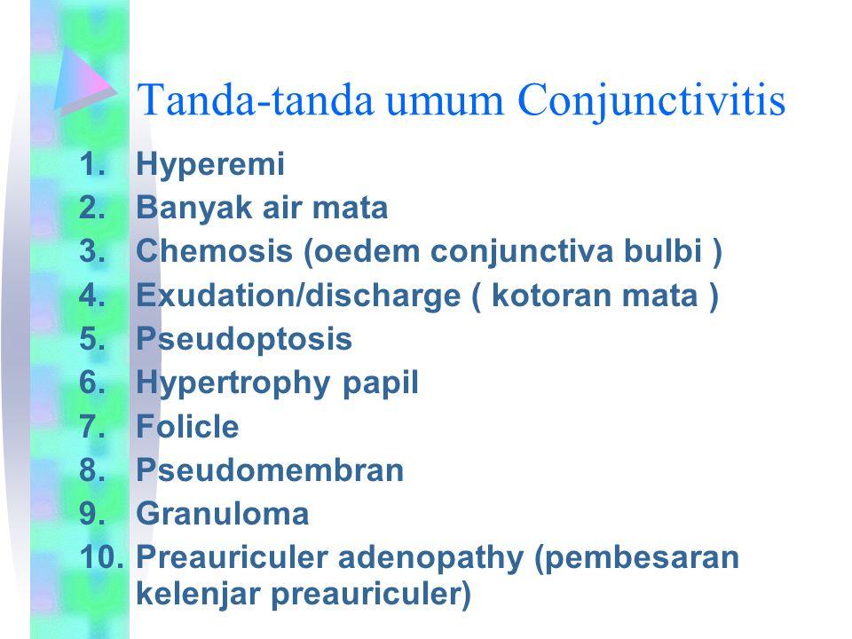 Tanda-tanda umum Conjunctivitis