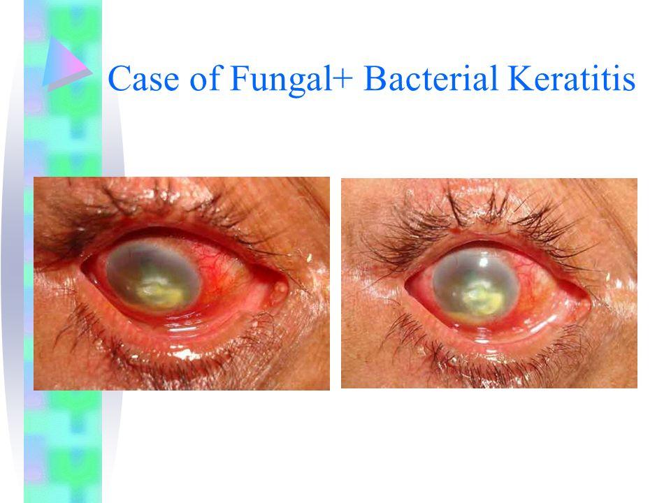 Case of Fungal+ Bacterial Keratitis