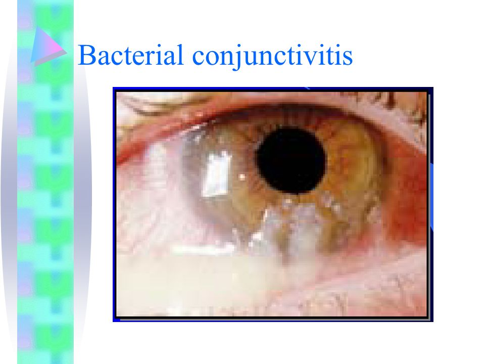 Bacterial conjunctivitis