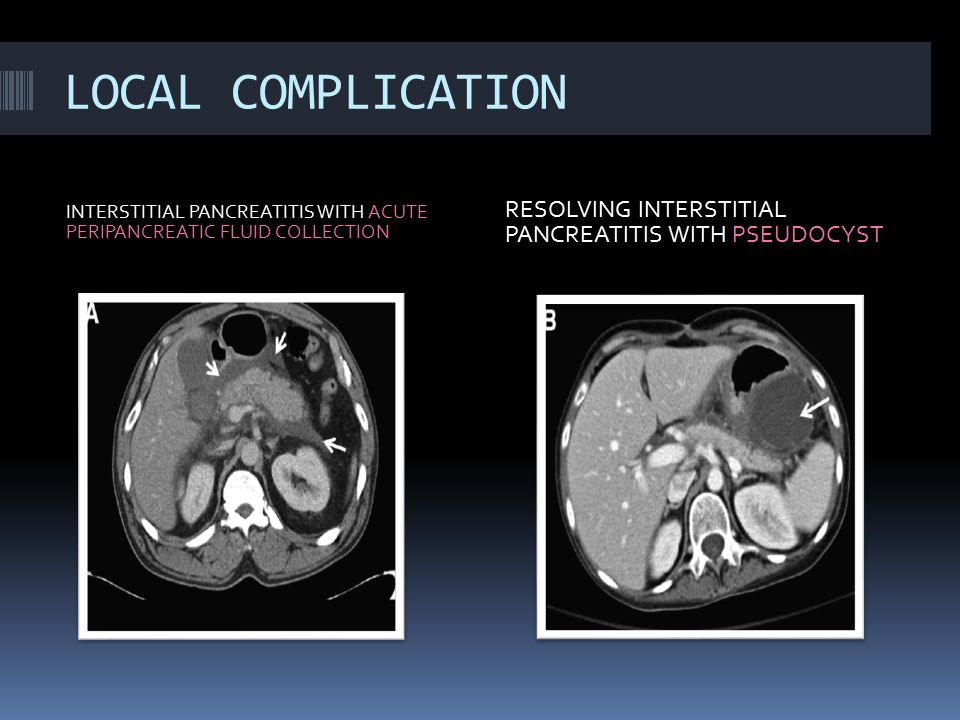 LOCAL COMPLICATION RESOLVING INTERSTITIAL PANCREATITIS WITH PSEUDOCYST