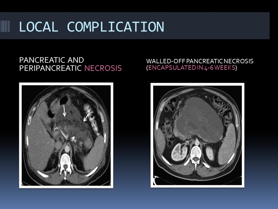 LOCAL COMPLICATION PANCREATIC AND PERIPANCREATIC NECROSIS