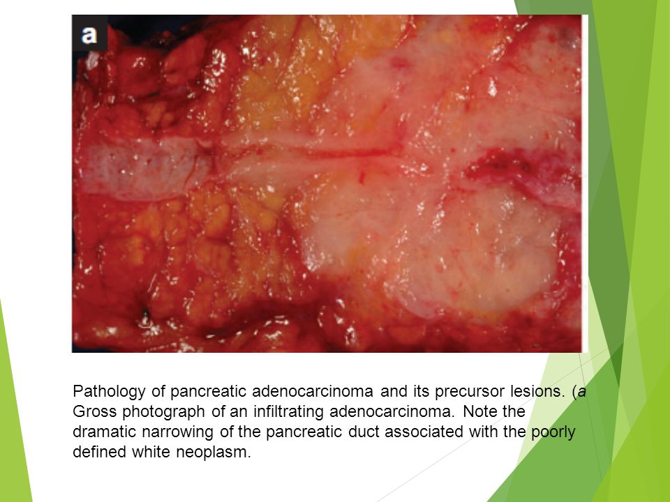 Pathology of pancreatic adenocarcinoma and its precursor lesions