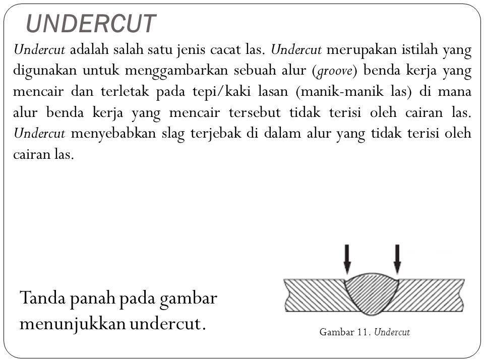 UNDERCUT Tanda panah pada gambar menunjukkan undercut.