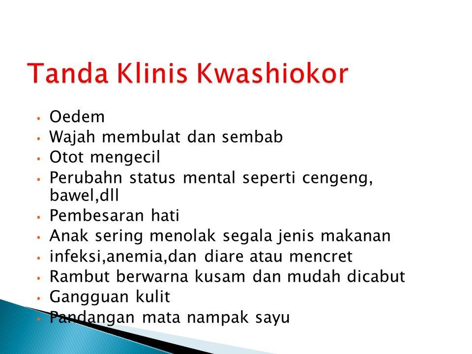 Tanda Klinis Kwashiokor