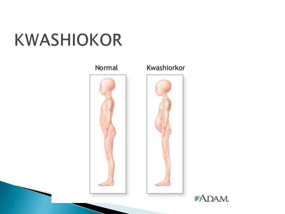 KWASHIOKOR