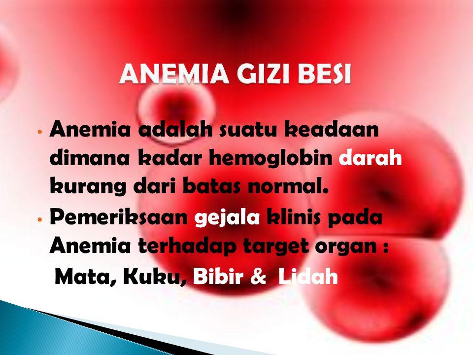 ANEMIA GIZI BESI Anemia adalah suatu keadaan dimana kadar hemoglobin darah kurang dari batas normal.