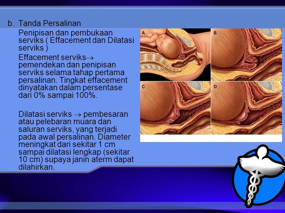 b. Tanda Persalinan Penipisan dan pembukaan serviks ( Effacement dan Dilatasi serviks )