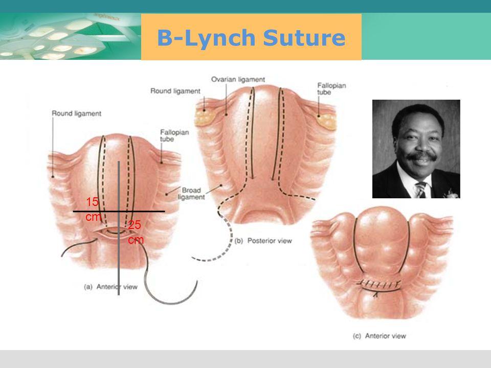 B-Lynch Suture 15 cm 25 cm