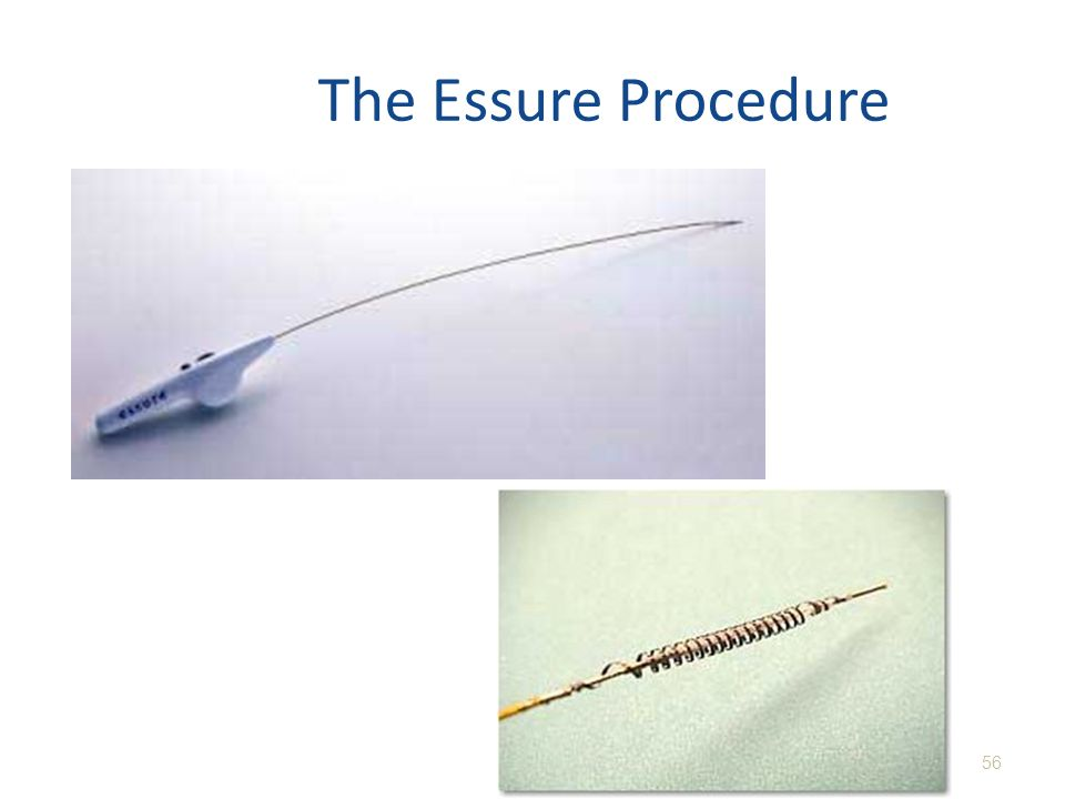The Essure Procedure