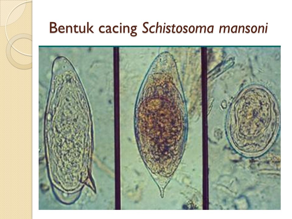 Bentuk cacing Schistosoma mansoni