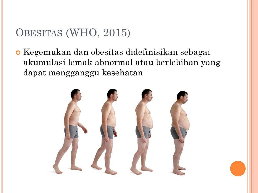 operatie obesitas