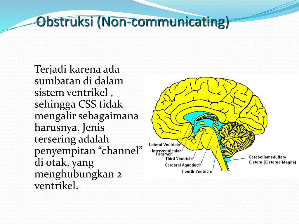 Charmant Anatomie Des Gehirns Ventrikel Zeitgenössisch - Anatomie ...