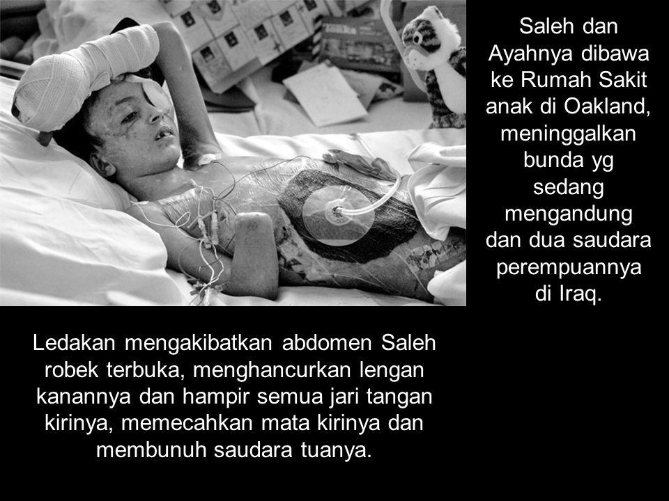 Saleh dan Ayahnya dibawa ke Rumah Sakit anak di Oakland, meninggalkan bunda yg sedang mengandung dan dua saudara perempuannya di Iraq.