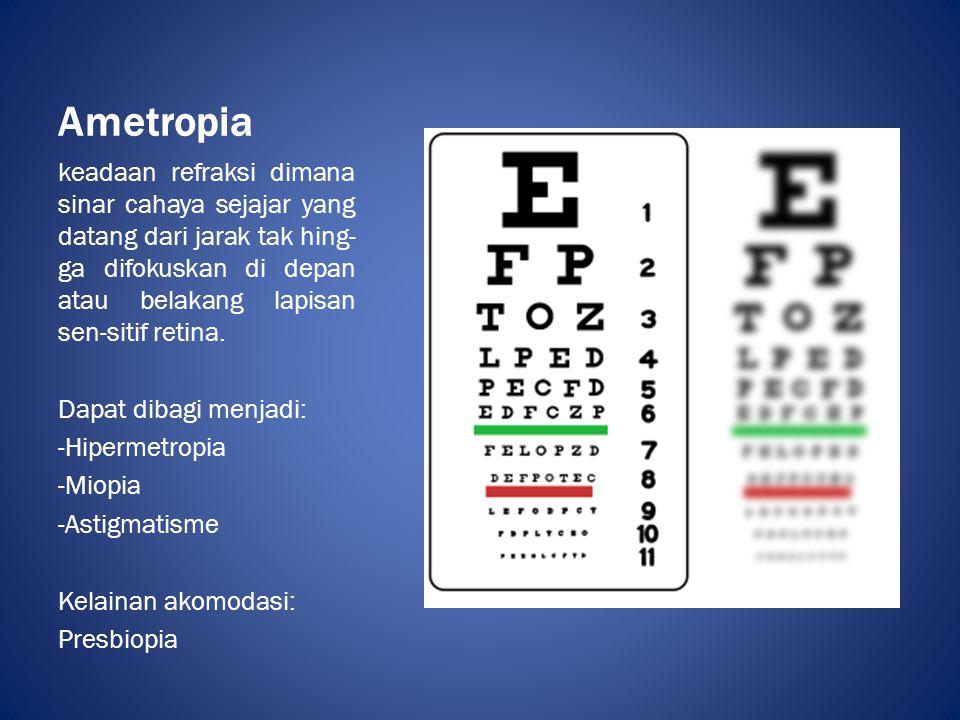 Ametropia keadaan refraksi dimana sinar cahaya sejajar yang datang dari jarak tak hing-ga difokuskan di depan atau belakang lapisan sen-sitif retina.