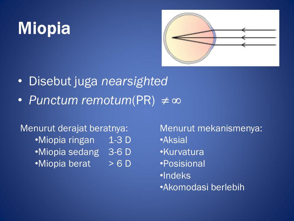 Miopia Disebut juga nearsighted Punctum remotum(PR)  