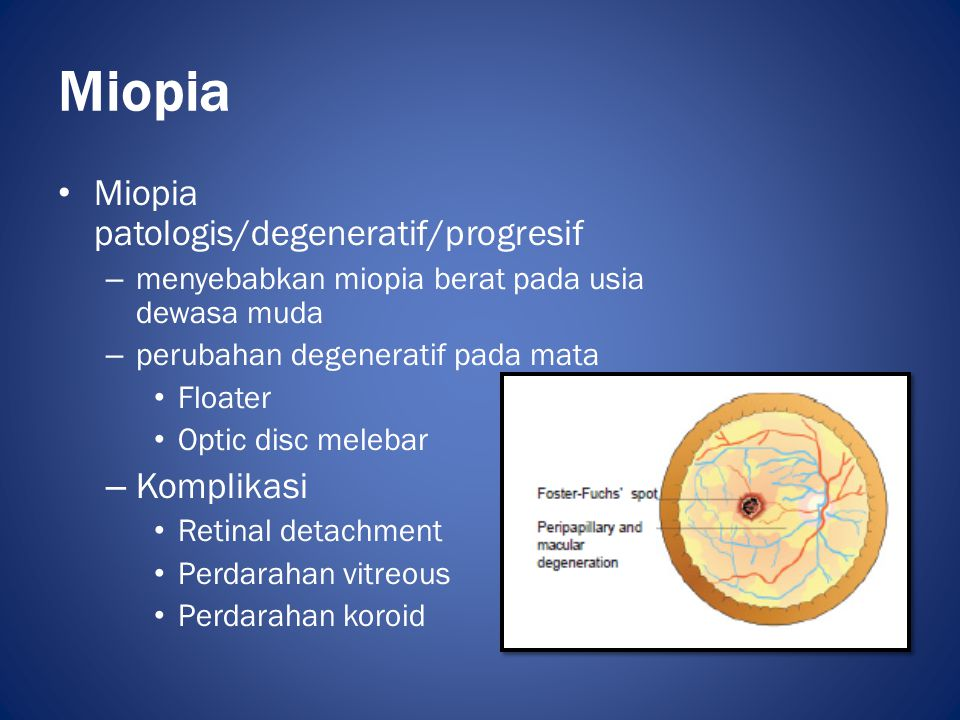 Miopia Miopia patologis/degeneratif/progresif Komplikasi
