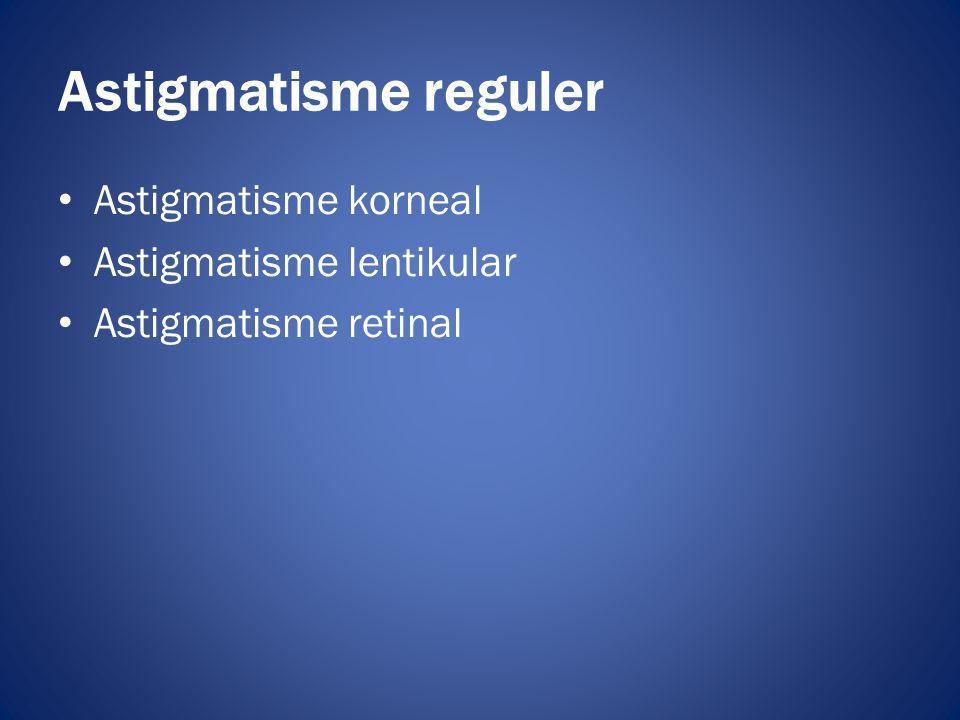 Astigmatisme reguler Astigmatisme korneal Astigmatisme lentikular