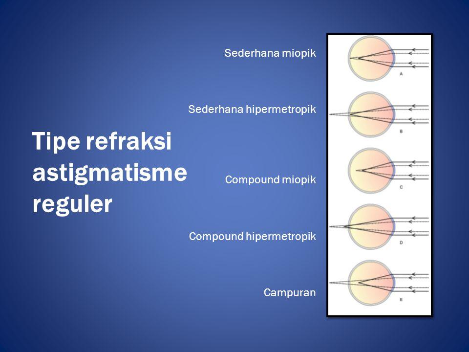 Tipe refraksi astigmatisme reguler